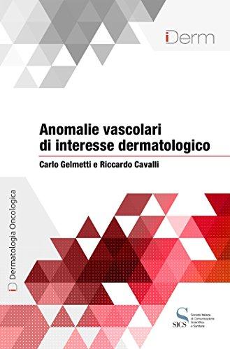 Anomalie vascolari di interesse dermatologico