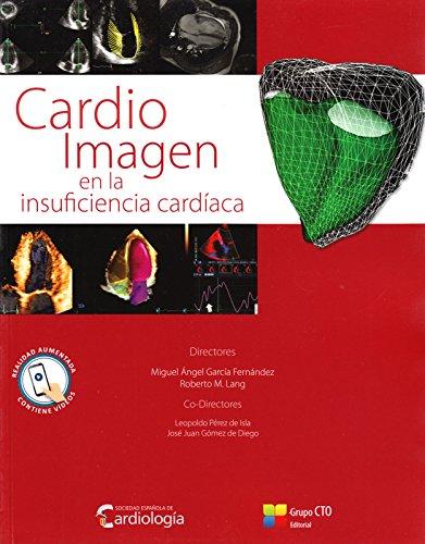 Cardio Imagen En La Insuficiencia Cardiaca/ Cardio Image Heart Failure