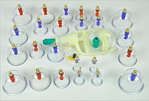 Vakuum-Schröpfmaschine Magnetische Schröpftasse Schröpfen der Familie Explosionsgeschützte Verdickungskombination