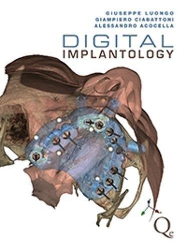 Digital Implantology por Giuseppe Luongo