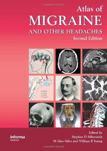 Atlas of Migraine and Other Headaches by Stephen D. Silberstein (Editor), Alan Stiles (Editor), William B. Young (Editor) (25-Jan-2005) Hardcover