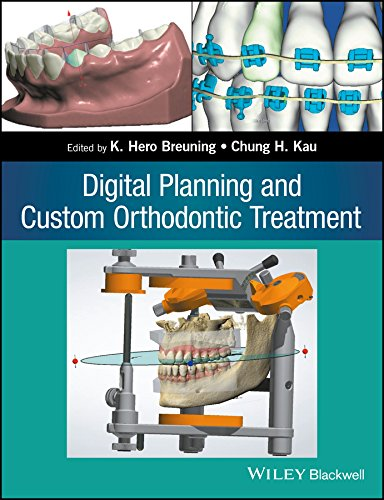 digital-planning-and-custom-orthodontic-treatment