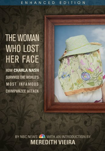 the-woman-who-lost-her-face-enhanced-edition-how-charla-nash-survived-the-worlds-most-infamous-chimp