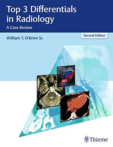 Top 3 Differentials in Radiology: A Case Review -