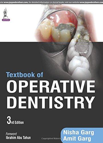 Textbook of Operative Dentistry por Nisha Garg
