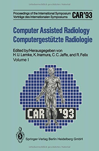 Computer Assisted Radiology / Computergest????tzte Radiologie: Proceedings of the International Symposium / Vortr????ge des Internationalen Symposiums ... Radiology (English and German Edition) (2013-03-09)