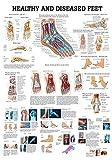 Ruediger Anatomie CH28LAM Healthy and Diseased Feet Tafel, englisch, 70 cm x 100 cm, laminiert
