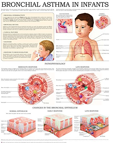 Bronchial Asthma In Infants E-chart: Quick Reference Guide por Hc-healthcomm epub