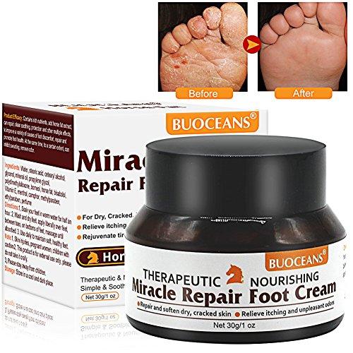 Crema de pie de atleta, anti fongique crema, anti Fungal, Traite EFFICACEMENT el pie del pie, guérit y prévient los infections fongiques