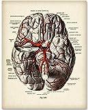 YISUMEI 30x40 cm Poster oder Leinwand-Bild gespannt Keilrahmen Malerei Canvas Gemälde Gehirn-Diagramm mit Adern