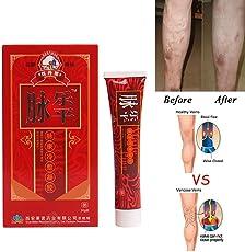 Hiveseen Krampfadern Creme für die Beine, Krampfadern Besenreiser Entfernen natürlich behandeln Relief Phlebitis Angiitis Entzündung Blutgefäß Venen Vaskulitis Behandlung Beine Care Safe Cream (30g)