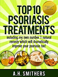 Top 10 treatments for psoriasis (English Edition)