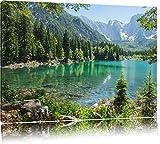 Wunderschöner See im Wald Format: 100x70 auf Leinwand, XXL riesige Bilder fertig gerahmt mit Keilrahmen, Kunstdruck auf Wandbild mit Rahmen, günstiger als Gemälde oder Ölbild, kein Poster oder Plakat