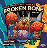 Your Amazing Body Mends a Broken Bone (Your Amazing Body)