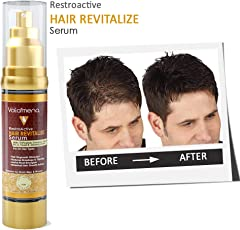 Volamena 100% Natural Hair Revitalize Serum for Hair Regrowth, Reduce Breakage & Active Root Energizer