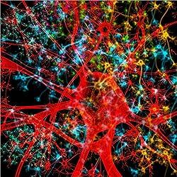 Cuadro sobre lienzo 120 x 120 cm: Neurona roja