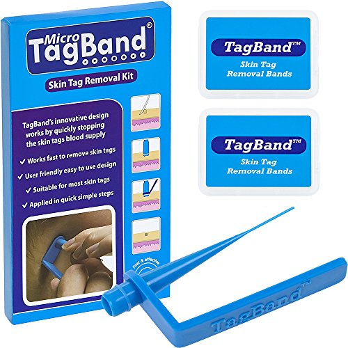 Micro-TagBand-Skin-Tag-Remover-Device-for-Small-to-Medium-Skin-Tags