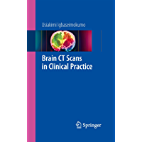 Brain CT Scans in Clinical Practice (English Edition)