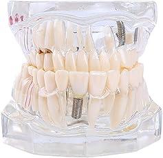 Botreelife Zähne Modell Transparent Pathologien Demonstration Dental Activity Modell