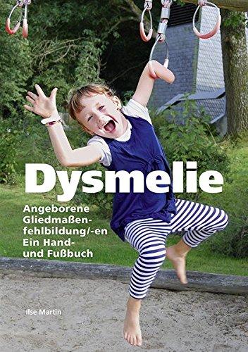 Dysmelie Angeborene Gliedmaßenfehlbildung/-en: Ein Hand- und Fußbuch