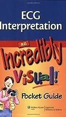 ECG Interpretation: An Incredibly Visual! Pocket Guide (Incredibly Easy! Series (R))