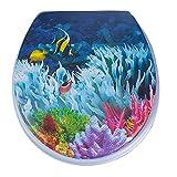 SAVORI WC Sitz Toilettendeckel mit Stabile Scharniere Toilettensitz Duroplast 17 Inch (Koralle)