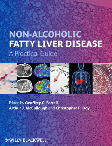 Non–Alcoholic Fatty Liver Disease: A Practical Guide