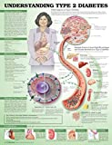 Understanding Type 2 Diabetes Anatomical Chart. Laminated