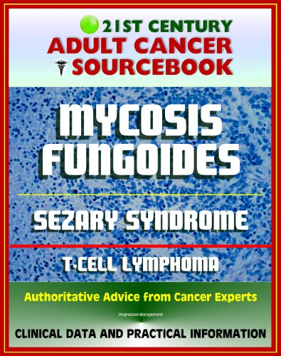 21st-century-adult-cancer-sourcebook-mycosis-fungoides-and-the-sezary-syndrome-cutaneous-t-cell-lymp
