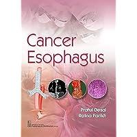 CANCER ESOPHAGUS (PB 2020)