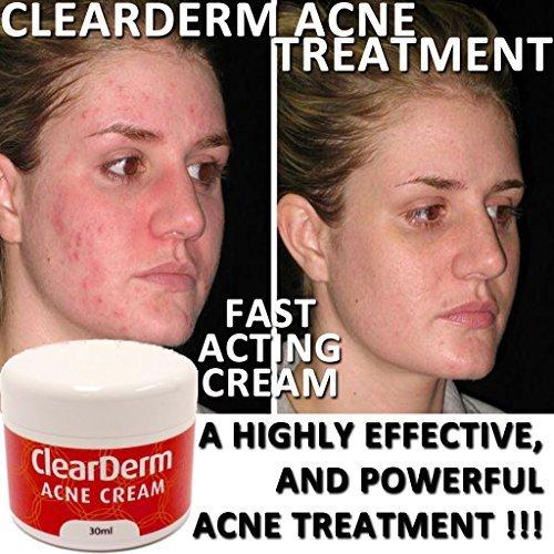 clearderm-akne-creme-die-nr1-acne-spot-treatment-