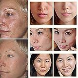 Vitamin C Serum Hochdosiert, Gesichtsserum mit Reiner Hyaluronsäure und Hochwertigem Vitamin C, Hyaluronsäure Serum für Gesicht, HOCHDOSIERT mit Hyaluronsäure / Anti-Falten / Anti-Age. 30ML - 7