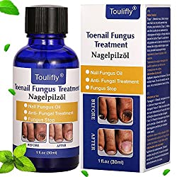 Fungus Stop, Fungus Treatment, Anti Fungus Nail Treatment, Effective Against Nail fungus, Anti Fungal Nail Oil,Removes Yellow from Infected Finger and Toe Nails,Restores Toenail Fungus