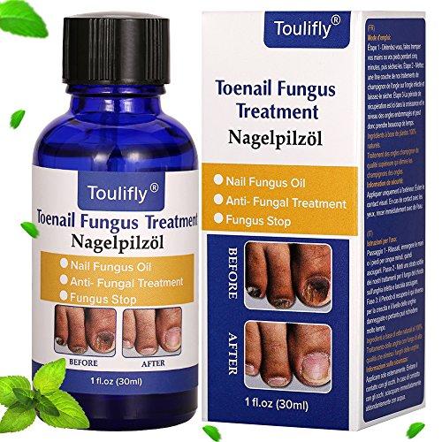 Fungus stop, fungo, trattamento anti Fungus nail trattamento, efficace contro nail Fungus, anti fungine delle unghie olio, rimuove giallo da dito e unghie dei piedi, ripristina Toenail Fungus