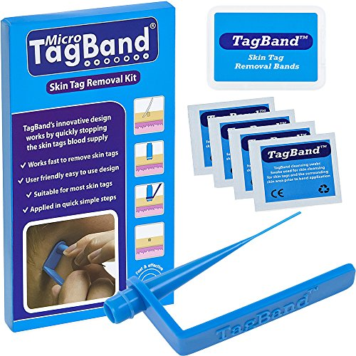 ag Remover Device for Small to Medium Skin Tags by TagBand (Band-tag)