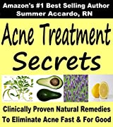 Acne Cure: Acne Treatment Secrets, Acne Scars: Acne Scars, Acne Cure, Acne Treatment (Acne Scars, Acne Cure, How To Get Rid Of Acne) (English Edition)