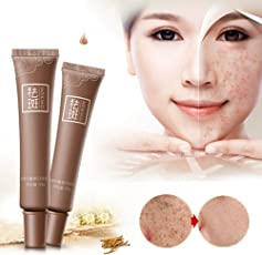 Woman Dark Spot Corrector Skin Whitening Fade Face Cream Lightening Removal Serum Reduces Age Spots Freckles Melasma by Leoie
