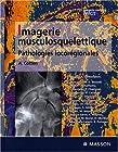 Imagerie musculosquelettique - Pathologies locorégionales: PATHOLOGIES LOCOREGIONALES