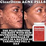 Clearderm Akne Tabletten , die Nr.1 Acne Spot Treatment & 1 -a-day !!