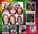 Hair, long beautiful Hair, toupee, wig or Hair transplants?  : (No Baldhead should be without)