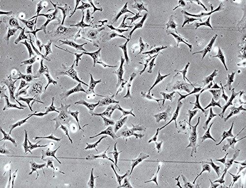 FALCON 354543 Corning BioCoat Fibronectin inserts 24 puits 3.0 µm (Pack de 24)