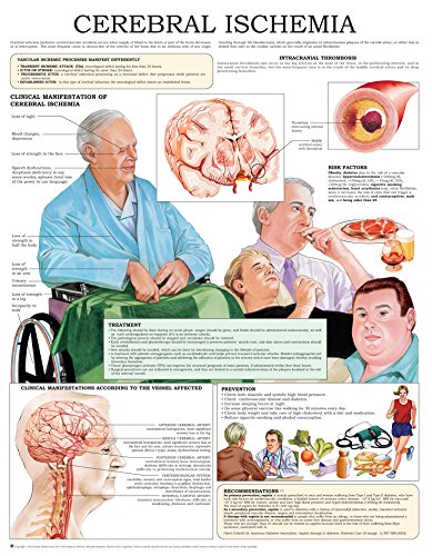 Cerebral ischemia e-chart: Quick reference guide (English Edition) (Blood Chart Flow)