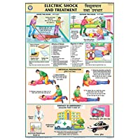 Electric Shock Treatment Chart (50x75cm)