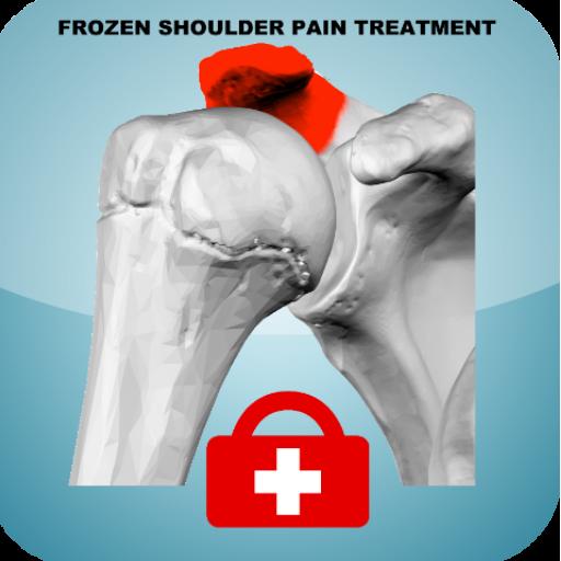 tratamiento-hombro-congelado