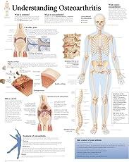 Osteoarthritis Laminated Poster