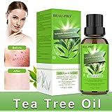 Tea Tree Oil, Olio Tea Tree Puro 100%, Naturale Olio Essenziale Tea Tree per Alleviare Imperfezioni della Pelle con Acne, Bru