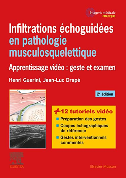 Amazon Fr Infiltrations Echoguidees En Pathologie Musculosquelettique Apprentissage Video Geste Et Examen Guerini Henri Drape Jean Luc Livres