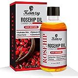 Hagebuttenöl am besten für hydratisiertes Haare, Körper, Haut, Hand, Fuß, Nagel. kaltgepresst aus reinen und natürlichen Samen. ROSEHIP oil auch nützlich für Massage-Therapie (120ml)
