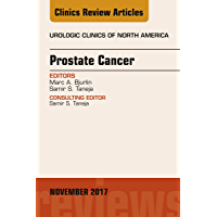 Prostate Cancer, An Issue of Urologic Clinics (The Clinics: Surgery Book 44) (English Edition)