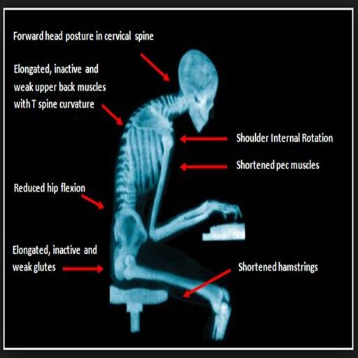 5 Common Posture Problems